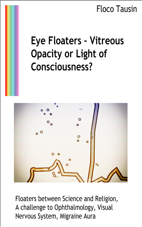 Eye Floaters – Vitreous Opacity or Light of Consciousness?